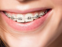 Choosing The Best Orthodontic Treatment For Your Teen: Part Two Common Brace Types for Your Teen